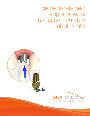 Cement-retained single crowns using cementable abutments