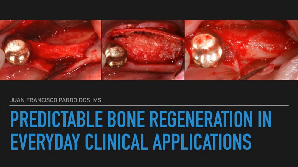 Predictable Bone Regeneration in Everyday Clinical Applications