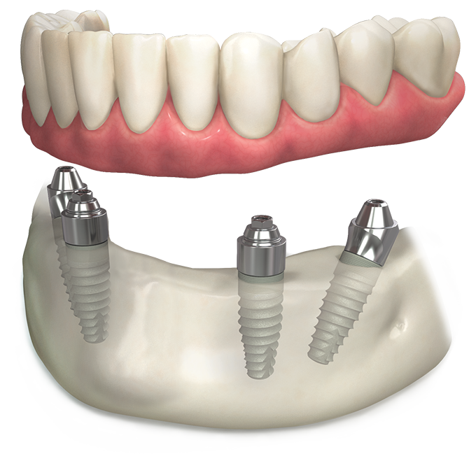 Multi-unit abutment system